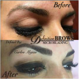Definition brows the jhon jhon institute for Qualifications for tattoo removal